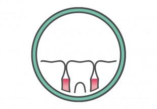 ont i tandköttet gravid
